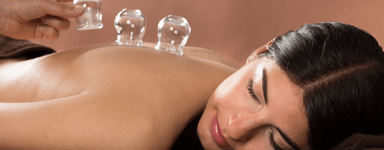 Cupping Lake Forest, IL